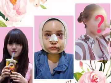 Hot facebook Thái Lan tung loạt ảnh cận cảnh PTTM đau đớn nhưng cái kết không thể ngọt hơn!