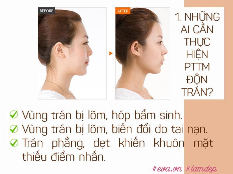 "vua cai thien hinh dang tran vua tao dang mui s-line, don tran that su ""than ky"" den vay? - 2"