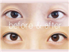 Thích mắt to nhờ cắt mí chưa đủ, chị em còn muốn mắt dài nhờ phẫu thuật mở tròng mắt!