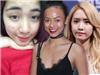 Từ mỹ nữ xứ Hàn đến Mai Ngô chuẩn Việt, ai ai cũng từng một thời mặt mụn ê chề!