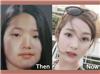 """Lý do khiến cô nàng này trở thành ca """"dao kéo"""" thành công nhất làng giải trí Hàn Quốc"""